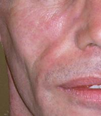 Sunken Cheeks Treatment Options