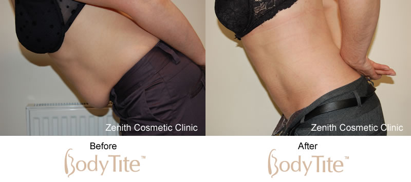BodyTite before and after results abdomen