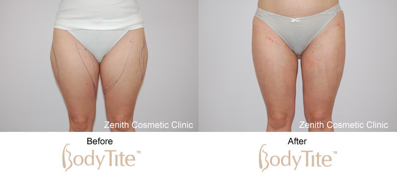 BodyTite before and after thighs
