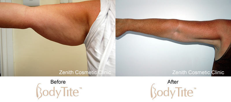 BodyTite before and after upper arms